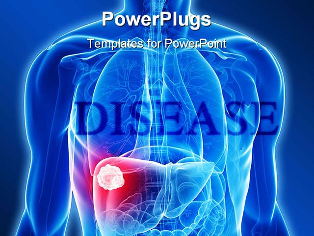 Disease powerpoint template bellacoola ppt liver gallbladder powerpoint presentation id 4504876 taxform powerpoints templates toneelgroepblik Images